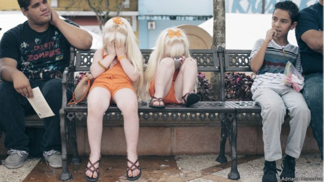 albinismo_fotos_624x351_adrianamonsalve